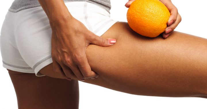 Best Foods That Reduce Cellulite.