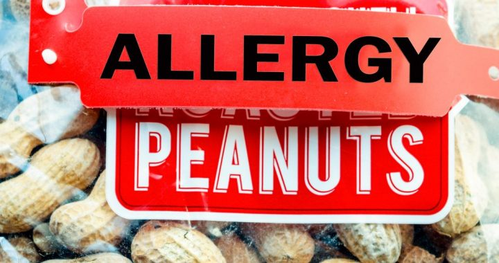 Food Allergies – Why Are They Increasing?